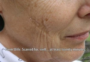 collodion-scar